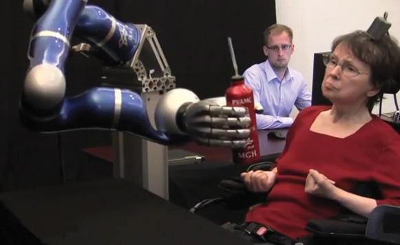 Con un brazo biónico mujer paralitica logra tomar una bebida (por Manuel Cosío)
