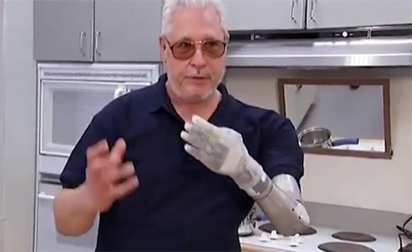 La FDA aprueba brazo biónico (por Manuel Cosío)